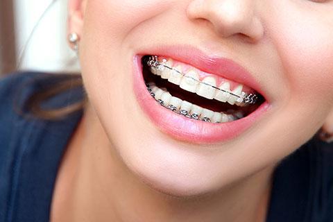 bloc-orthodontie-ados-2